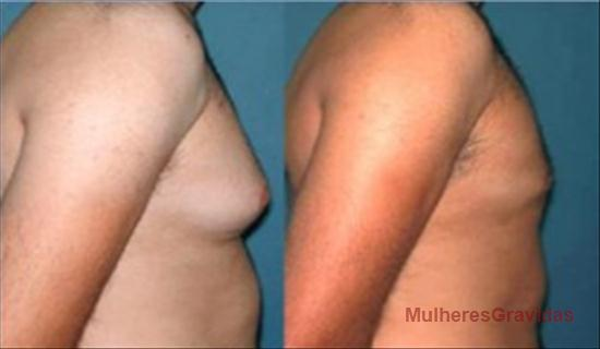 O peito pode aumentar a nata