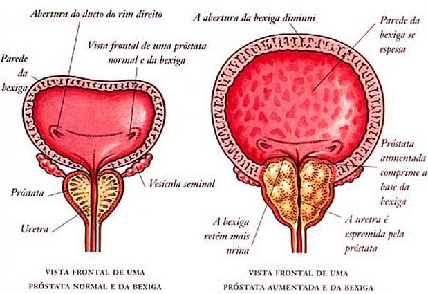 diagnóstico e tratamento câncer de próstata