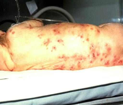 herpes neonatal em bebê