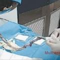 coleta do cordão umbilical